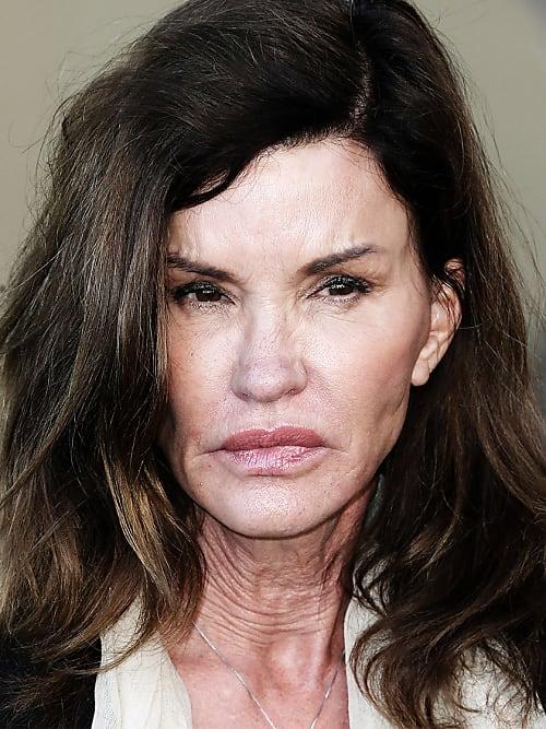 Botox Promis