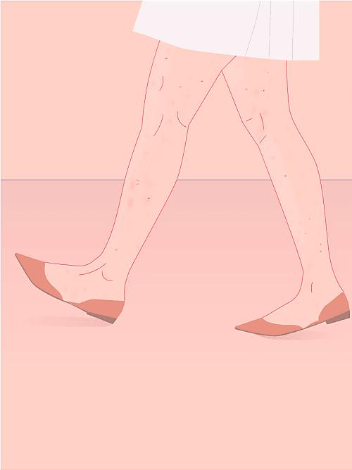 Was Tun Gegen Fleckige Beine Die Besten Tipps Stylight