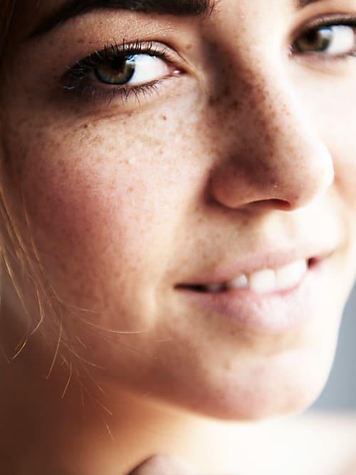 Frauen mit sommersprossen kennenlernen